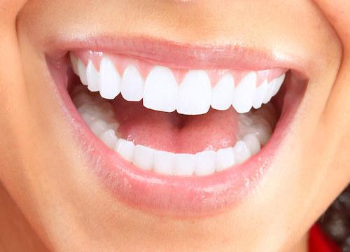 Close up of patients smile at cosmetic dentist in Aston PA
