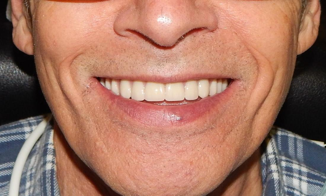 Results from treatment for dentures in Aston PA | Aston Dentist Office