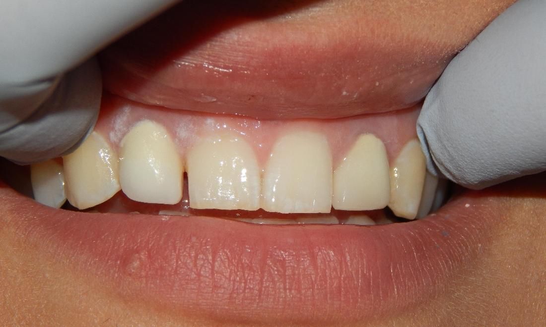 Woman with misaligned and gap in teeth | Dentist in Aston PA
