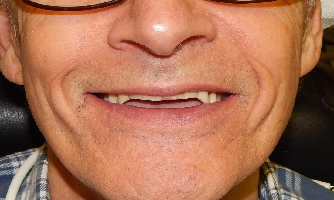 Man with worn down teeth | Dentist in Aston PA